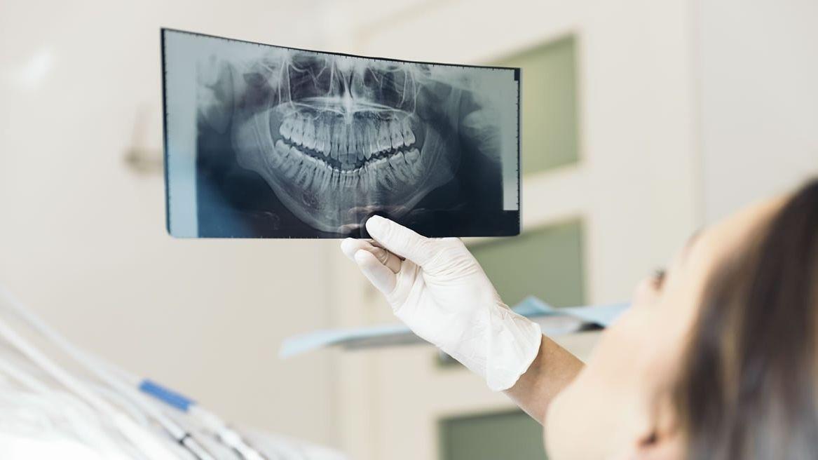 penyebab sakit gigi saat hamil
