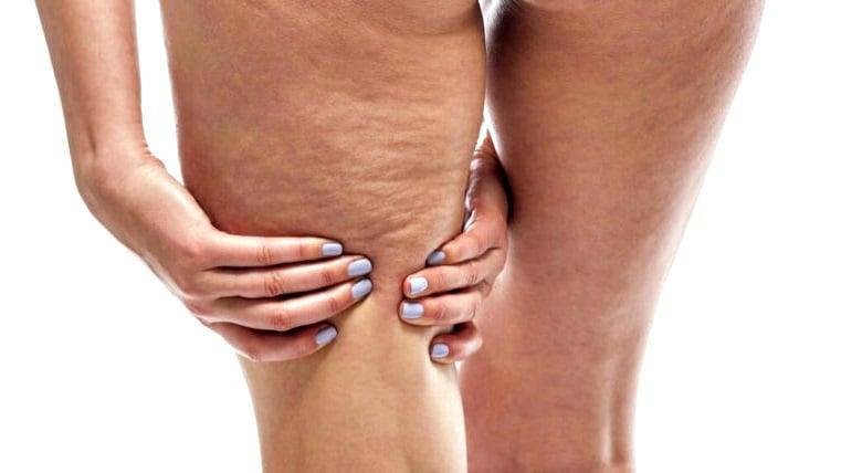 Stretch mark karena peregangan otot
