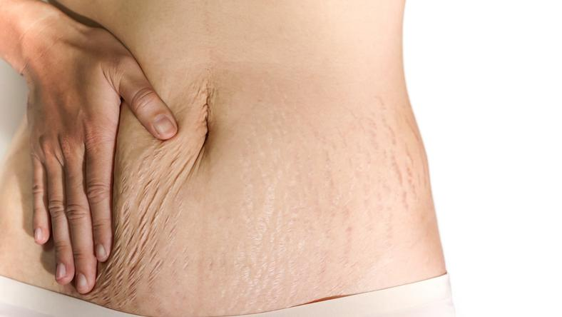 stretch mark dipengaruhi oleh genetik
