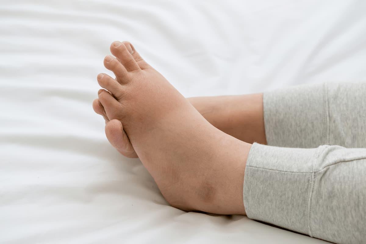 penyebab kaki bengkak saat hamil
