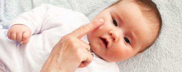 cara cepat mengatasi keringat buntet pada bayi dengan salep